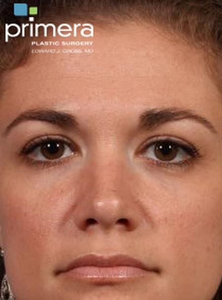 BOTOX® Cosmetic Case